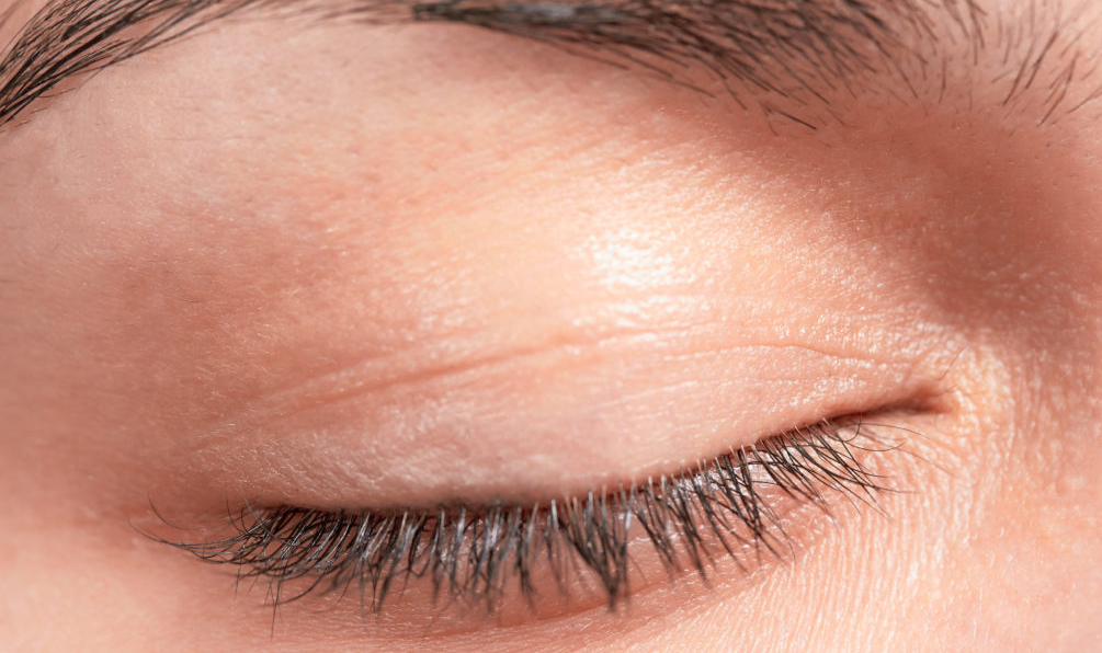 how to get rid of a rash on your eyelid