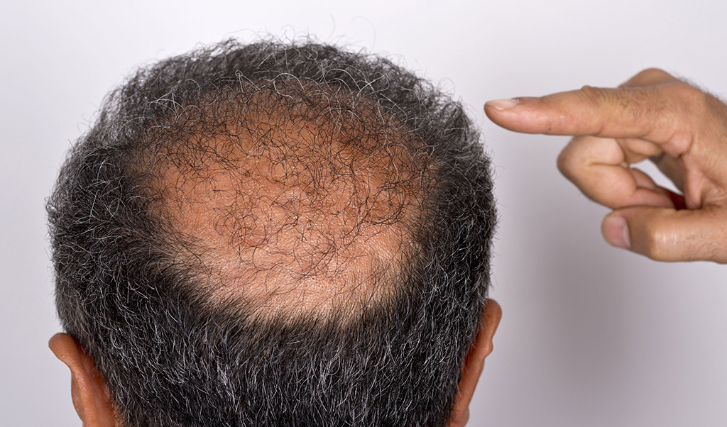 From Bald Patches To Thick Locks How To Grow Your Hair Back